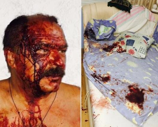Невідомі вночі підпалили автомобілі працівниці селищної ради Коцюбинського Александрової - Цензор.НЕТ 7299